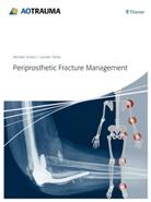 Carsten Perka, Michae Schütz, Michael Schütz - Periprosthetic Fracture Management